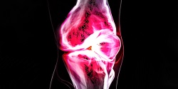 Knee injuries - Massage Nedlands